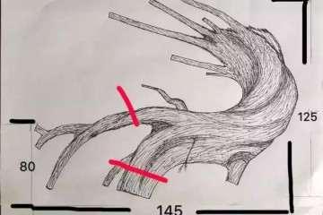 图解 罗汉松盆景《千帆》怎么造型的方法